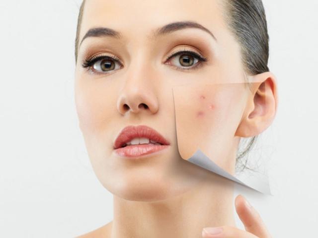 Akne-Behandlung